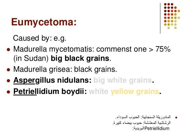mycetoma