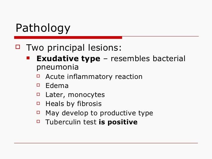 Pathology   <ul><li>Two principal lesions: </li></ul><ul><ul><li>Exudative type  – resembles bacterial pneumonia </li></ul...