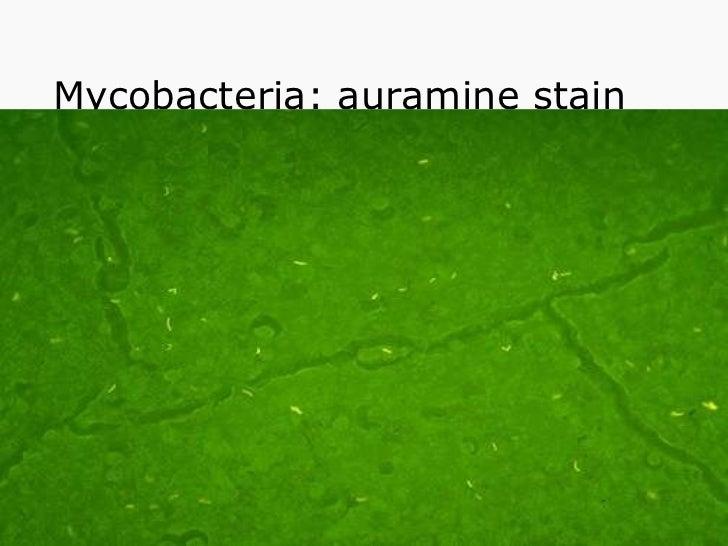 Mycobacteria: auramine stain