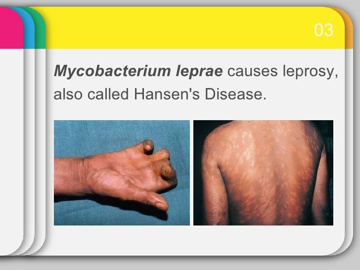 causes and spread of infection 6 essay Free essays non human vertebrates role in human parasitic role in human parasitic infections biology essay to forestall the spread of infection to.