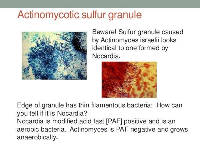 Actinomycotic mycetoma case study