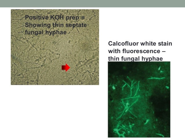 Positive KOH prep Showing thin septate fungal hyphae Calcofluor white stain with fluorescence – thin fungal hyphae