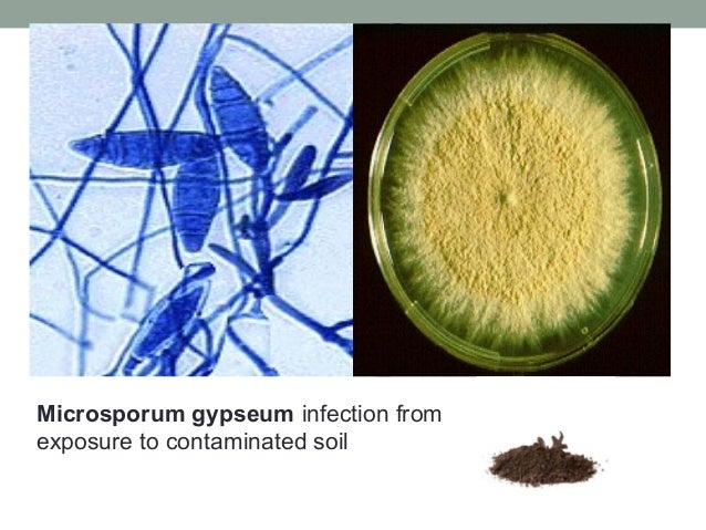 Microsporum gypseum infection from exposure to contaminated soil