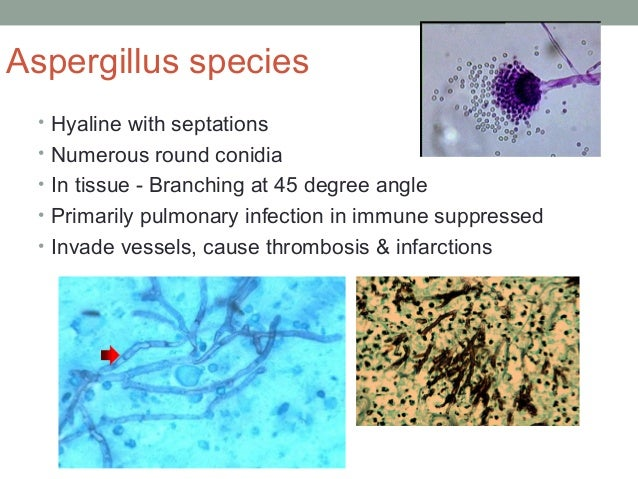 Aspergillus species • Hyaline with septations • Numerous round conidia • In tissue - Branching at 45 degree angle • Primar...