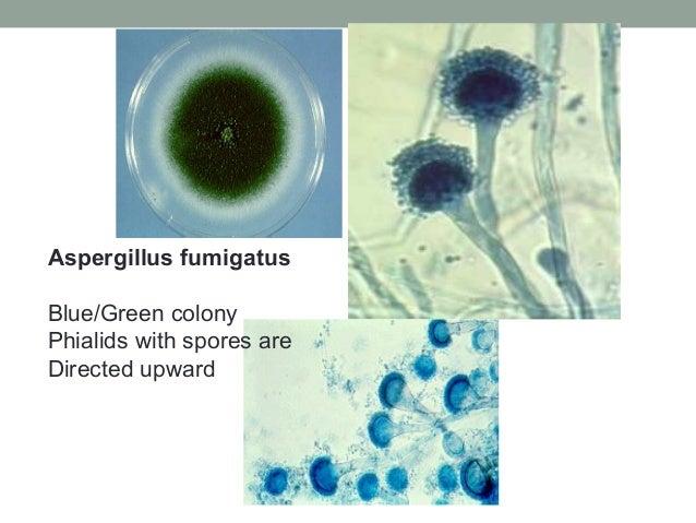 Aspergillus fumigatus Blue/Green colony Phialids with spores are Directed upward