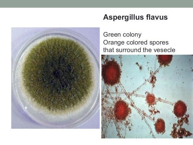 Aspergillus flavus Green colony Orange colored spores that surround the vesecle