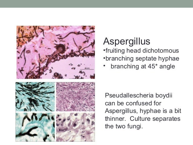 Aspergillus •fruiting head dichotomous •branching septate hyphae • branching at 45* angle Pseudallescheria boydii can be c...