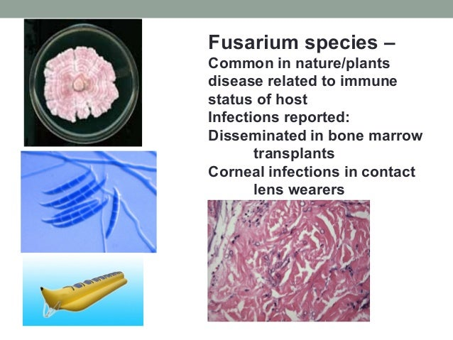 Fusarium species – Common in nature/plants disease related to immune status of host Infections reported: Disseminated in b...