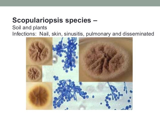 Scopulariopsis species – Soil and plants Infections: Nail, skin, sinusitis, pulmonary and disseminated