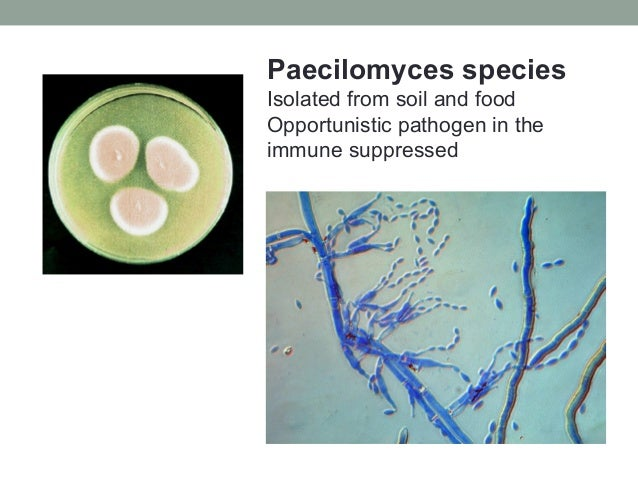 Paecilomyces species Isolated from soil and food Opportunistic pathogen in the immune suppressed