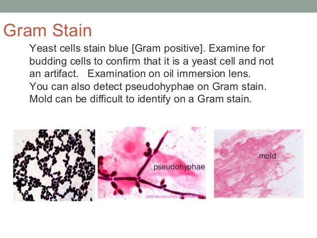 Yeast cells stain blue [Gram positive]. Examine for budding cells to confirm that it is a yeast cell and not an artifact. ...