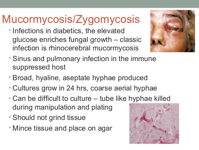 Mucormycosis/Zygomycosis • Infections in diabetics, the elevated glucose enriches fungal growth – classic infection is rhi...