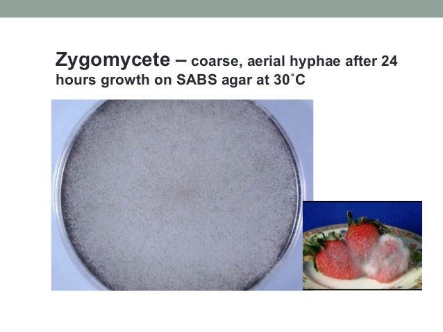 Zygomycete – coarse, aerial hyphae after 24 hours growth on SABS agar at 30˚C