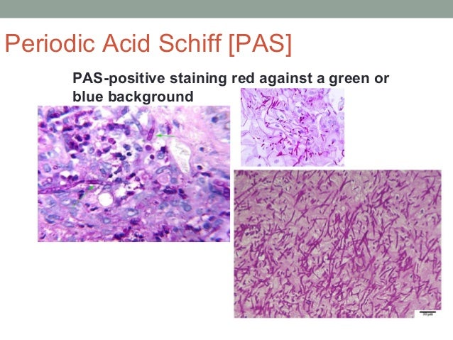 PAS-positive staining red against a green or blue background Periodic Acid Schiff [PAS]