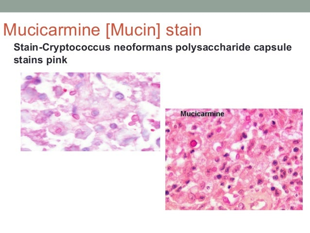 Stain-Cryptococcus neoformans polysaccharide capsule stains pink Mucicarmine [Mucin] stain