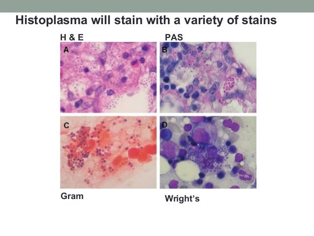 H & E PAS Gram Wright's Histoplasma will stain with a variety of stains