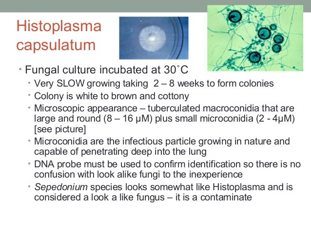 Histoplasma capsulatum • Fungal culture incubated at 30˚C • Very SLOW growing taking 2 – 8 weeks to form colonies • Colony...