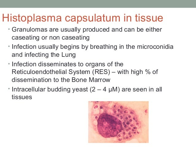 Histoplasma capsulatum in tissue • Granulomas are usually produced and can be either caseating or non caseating • Infectio...