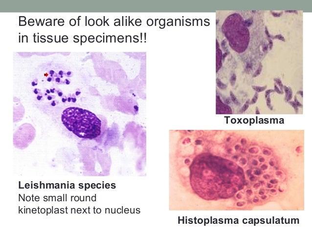 Leishmania species Note small round kinetoplast next to nucleus Toxoplasma Histoplasma capsulatum Beware of look alike org...