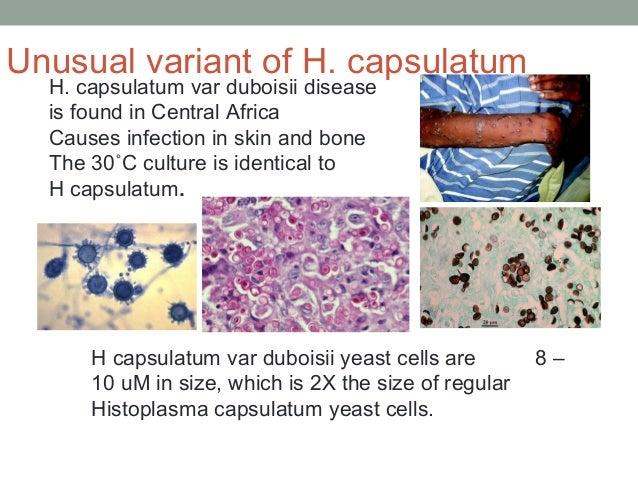 H capsulatum var duboisii yeast cells are 8 – 10 uM in size, which is 2X the size of regular Histoplasma capsulatum yeast ...