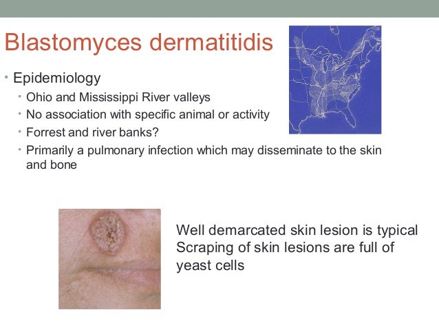 Blastomyces dermatitidis • Epidemiology • Ohio and Mississippi River valleys • No association with specific animal or acti...