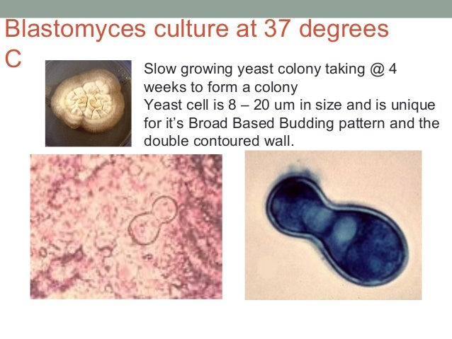 Slow growing yeast colony taking @ 4 weeks to form a colony Yeast cell is 8 – 20 um in size and is unique for it's Broad B...