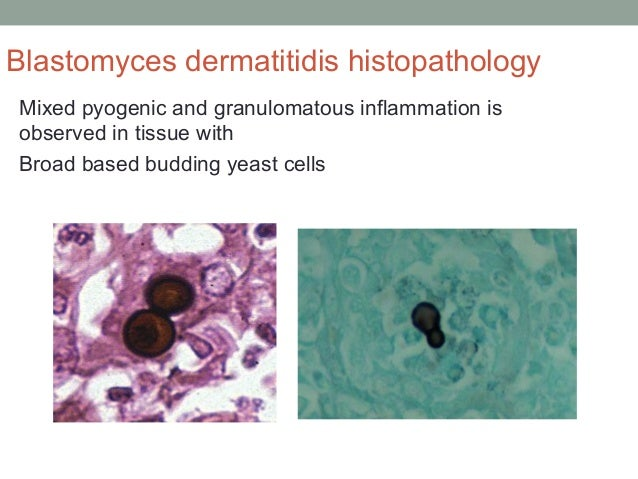 Blastomyces dermatitidis histopathology Mixed pyogenic and granulomatous inflammation is observed in tissue with Broad bas...