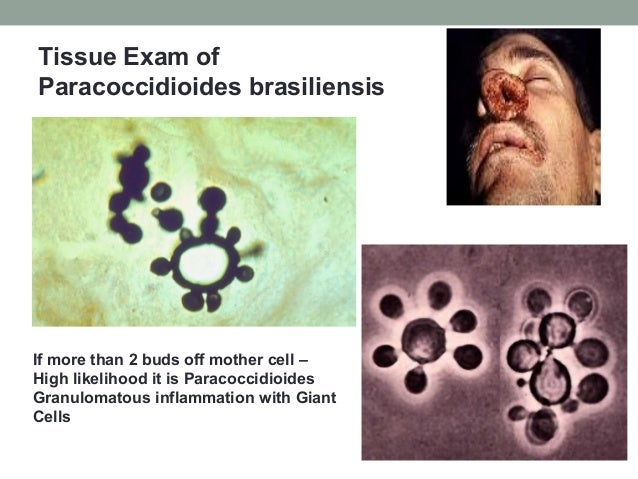 Tissue Exam of Paracoccidioides brasiliensis If more than 2 buds off mother cell – High likelihood it is Paracoccidioides ...