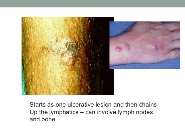 Starts as one ulcerative lesion and then chains Up the lymphatics – can involve lymph nodes and bone