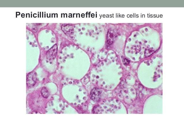 Penicillium marneffei yeast like cells in tissue
