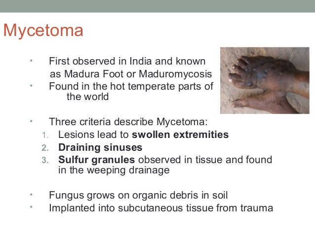 Mycetoma • First observed in India and known as Madura Foot or Maduromycosis • Found in the hot temperate parts of the wor...