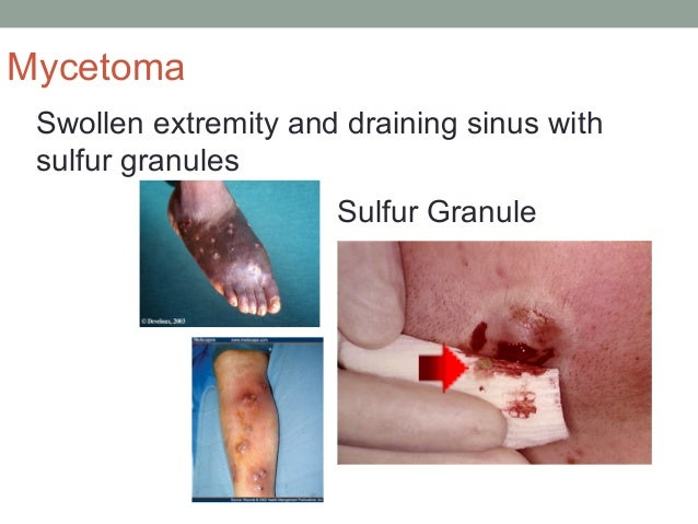 Swollen extremity and draining sinus with sulfur granules Sulfur Granule Mycetoma