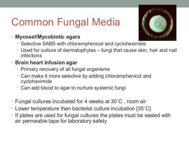 Common Fungal Media • Mycosel/Mycobiotic agars • Selective SABS with chloramphenicol and cycloheximide • Used for culture ...
