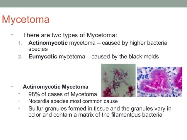 Mycetoma • There are two types of Mycetoma: 1. Actinomycotic mycetoma – caused by higher bacteria species 2. Eumycotic myc...