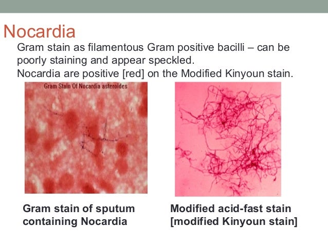 Gram stain as filamentous Gram positive bacilli – can be poorly staining and appear speckled. Nocardia are positive [red] ...