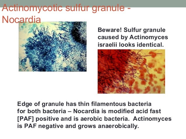 Edge of granule has thin filamentous bacteria for both bacteria – Nocardia is modified acid fast [PAF] positive and is aer...