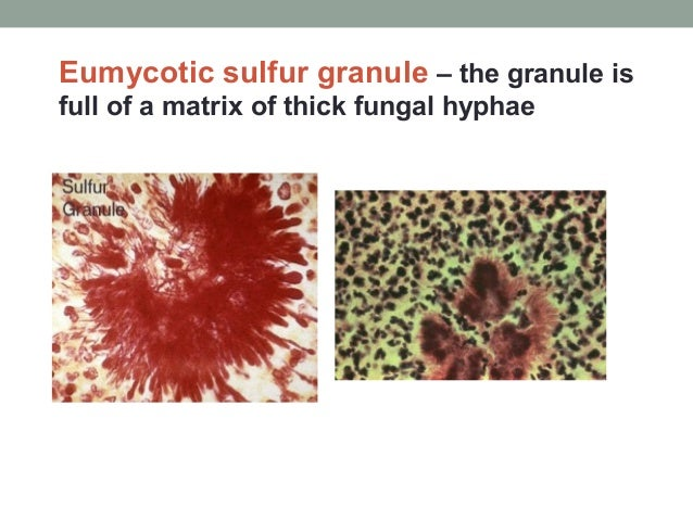 Eumycotic sulfur granule – the granule is full of a matrix of thick fungal hyphae