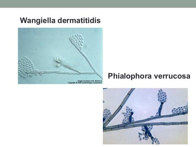 Wangiella dermatitidis Phialophora verrucosa