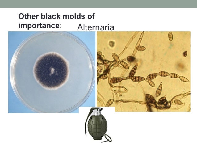 Alternaria Other black molds of importance: