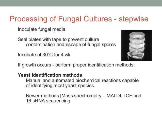 Inoculate fungal media Seal plates with tape to prevent culture contamination and escape of fungal spores Incubate at 30˚C...