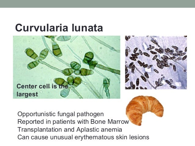 Curvularia lunata Center cell is the largest Opportunistic fungal pathogen Reported in patients with Bone Marrow Transplan...