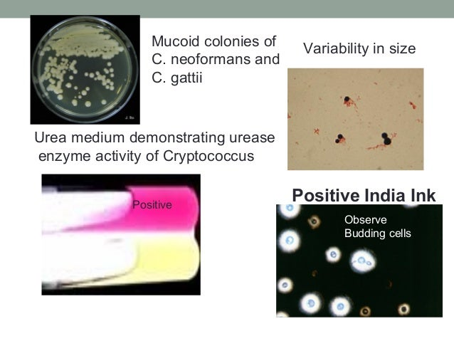 Positive India Ink Urea medium demonstrating urease enzyme activity of Cryptococcus Observe Budding cells Variability in s...