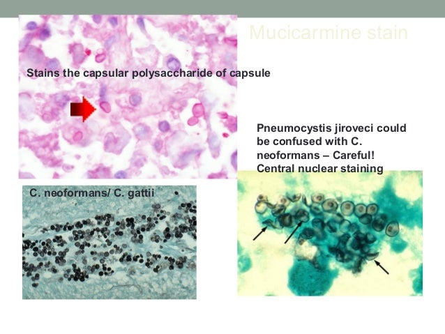 Mucicarmine stain Stains the capsular polysaccharide of capsule Pneumocystis jiroveci could be confused with C. neoformans...
