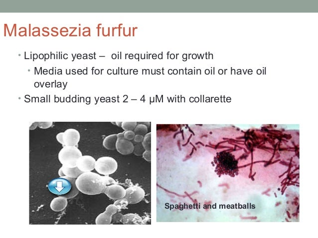 Malassezia furfur • Lipophilic yeast – oil required for growth • Media used for culture must contain oil or have oil overl...