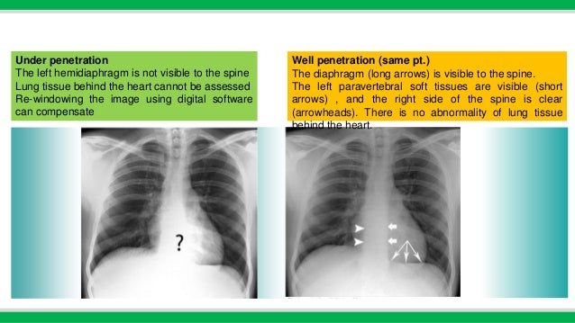 chest x ray basics pdf