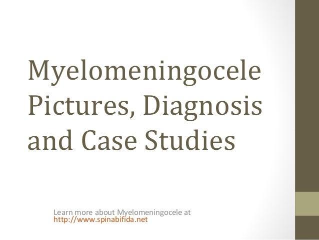 MyelomeningocelePictures, Diagnosisand Case StudiesLearn more about Myelomeningocele athttp://www.spinabifida.net