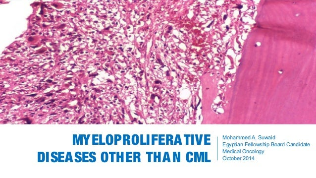 MYELOPROLIFERATIVE DISEASES OTHER THAN CML Mohammed A. Suwaid Egyptian Fellowship Board Candidate Medical Oncology October...