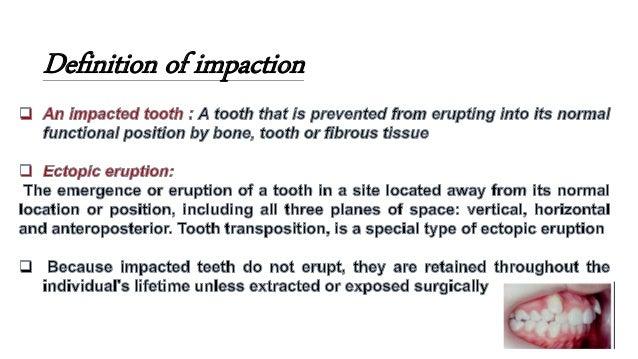 impacted teeth  Slide 2