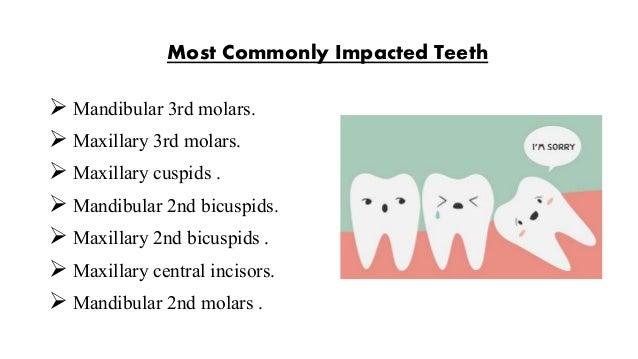 impacted teeth  Slide 3