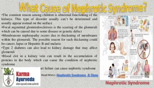 Ayurvedic Medicine For Nephrotic Syndrome Diet Chart For Nephrotic Syndrome